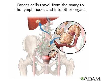 Ovarian cancer metastasis