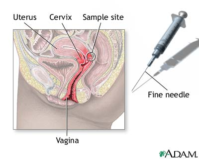 Cervix needle sample
