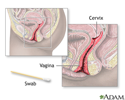 Pap Smear Medlineplus Medical Encyclopedia Image