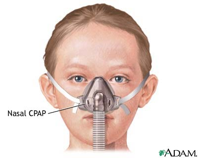 nasal cannula for cpap machine