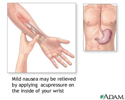 Nausea acupressure: MedlinePlus Medical Encyclopedia Image