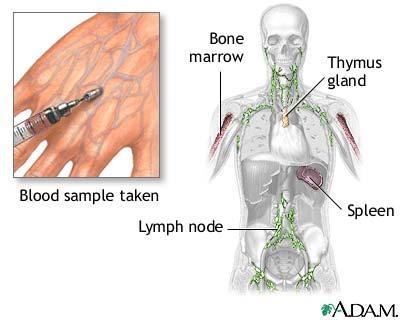 Nitroblue tetrazolium test