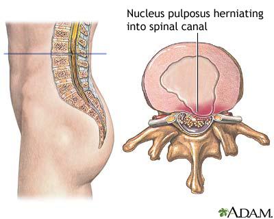 El médico el reumatólogo la osteocondrosis