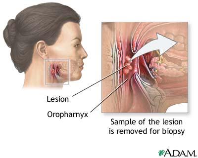 Oropharyngeal biopsy