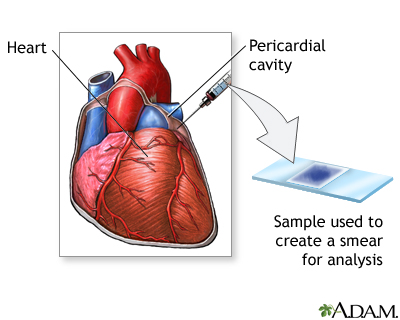 Pericardial fluid stain