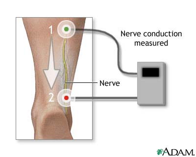 Nerve conduction test