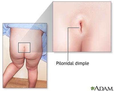 Pilonidal dimple: MedlinePlus Medical Encyclopedia Image