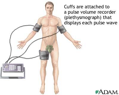 Plethysmography