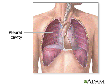 pleural cavity: medlineplus medical encyclopedia image, Human Body
