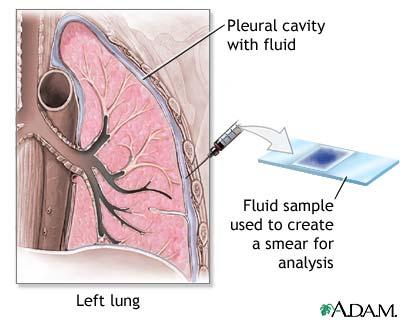 Pleural smear