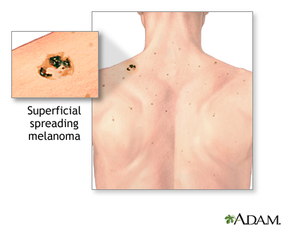 melanoma: medlineplus medical encyclopedia, Skeleton