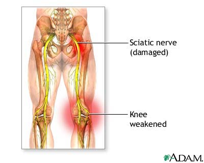 Sciatic nerve damage: MedlinePlus Medical Encyclopedia Image