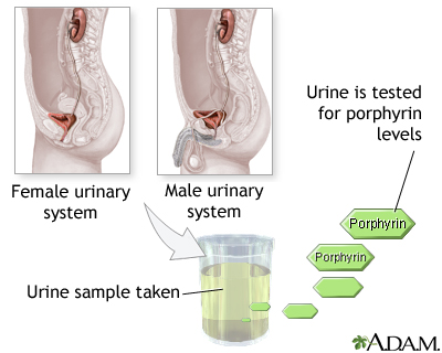 Porphyrin urine test