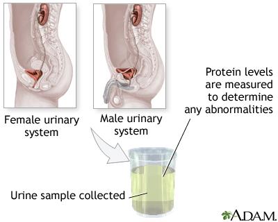 Protein urine test