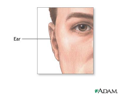 Ear protuberance