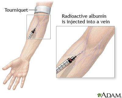 Albumin injection