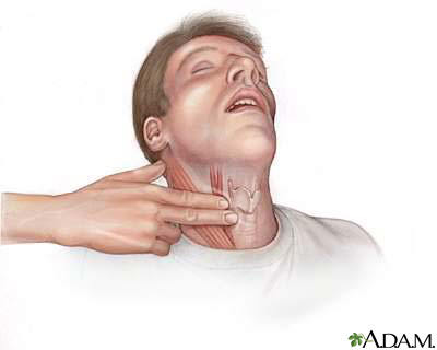 Neck pulse: MedlinePlus Medical Encyclopedia Image