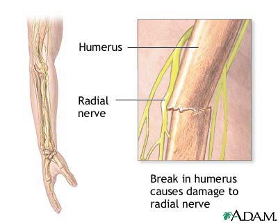 Radial nerve dysfunction: MedlinePlus Medical Encyclopedia Image