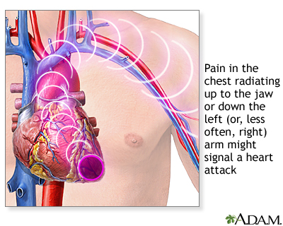 Labeled diagram of heart attack symptoms cancer asbestos httpnlmhmedlineplusency diagram of the human heart ccuart Images