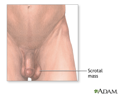 Scrotal mass