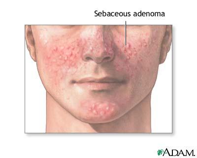 Sebaceous adenoma