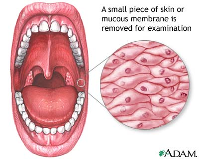 Mucosal biopsy