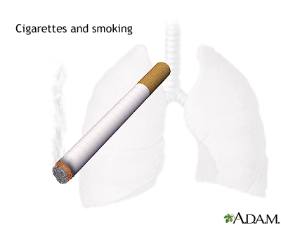 Tips on how to quit smoking: MedlinePlus Medical Encyclopedia