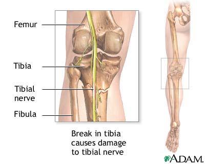 Tibial nerve: MedlinePlus Medical Encyclopedia Image