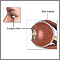 Eye muscle repair - normal anatomy