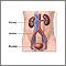 Kidney transplant - series