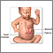 Pyloric stenosis - infant - Series