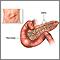 Pancreas transplant - series
