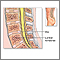 Bone graft - series