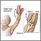 Radial dislocation may be caused by a sudden pull on a child's arm or hand. For first aid, immobilize the arm and take the child to the doctor's office or emergency room.