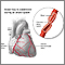 Coronary artery spasm