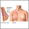 Breast augmentation - series