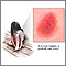 Bruise healing - series