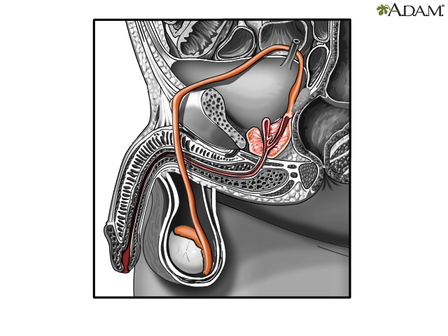 Sperm release pathway - Health Video: MedlinePlus Medical Encyclopedia