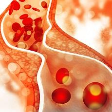 Enfermedades de las arterias carótidas