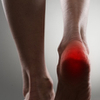Heel Injuries and Disorders