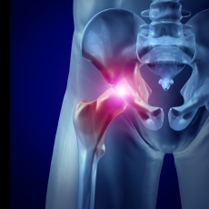 Hip Injuries and Disorders