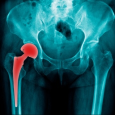Hip Replacement Surgery >> Hip Replacement Surgery Hip Arthroplasty Medlineplus