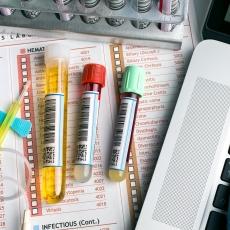 Kidney Tests