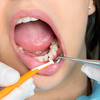 Mouth Disorders