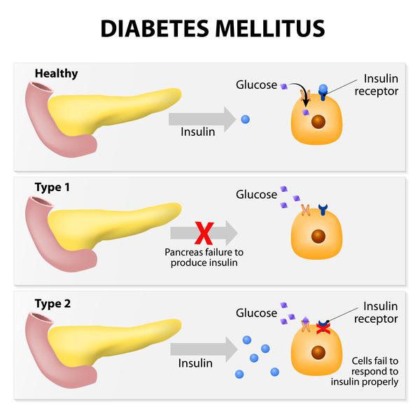Adipositas diabetes mellitus typ 2