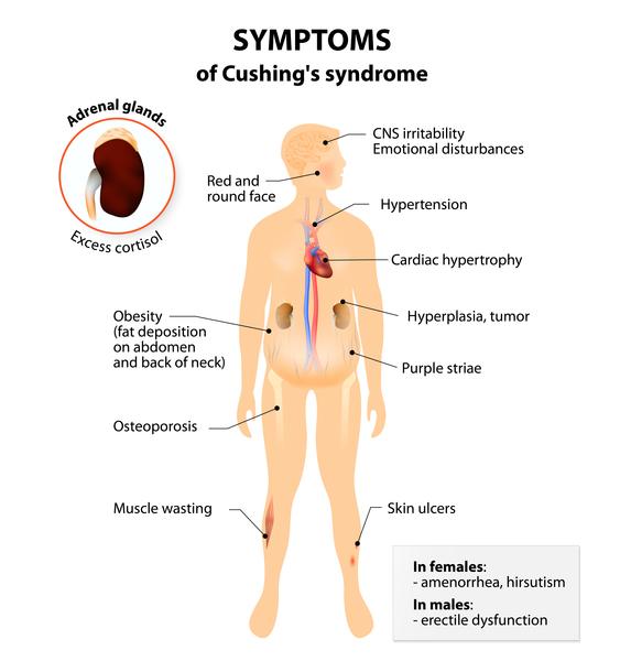 Cushing Disease Medlineplus Genetics