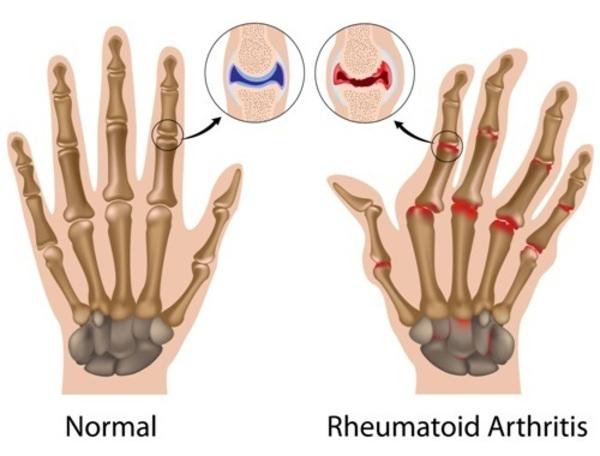 Rheumatoid Arthritis Medlineplus Genetics
