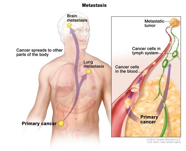 Wilms Tumor Medlineplus Genetics