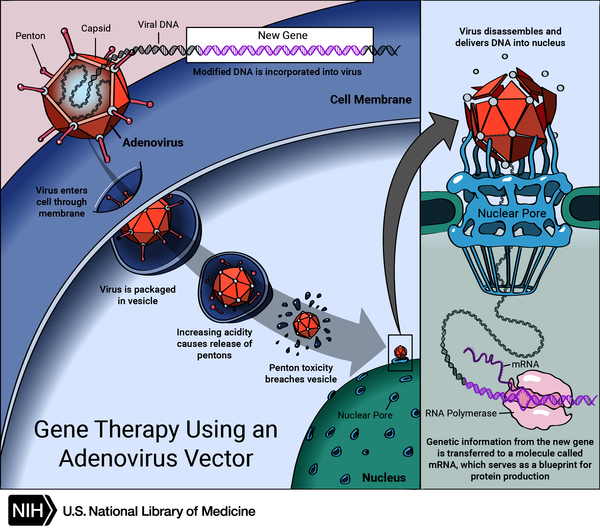 A new gene is inserted directly into a cell. A carrier called a vector is genetically engineered to deliver the gene. An adenovirus introduces the DNA into the nucleus of the cell, but the DNA is not integrated into a chromosome.