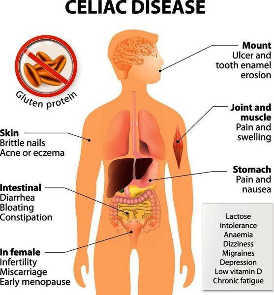 Celiac disease: MedlinePlus Genetics